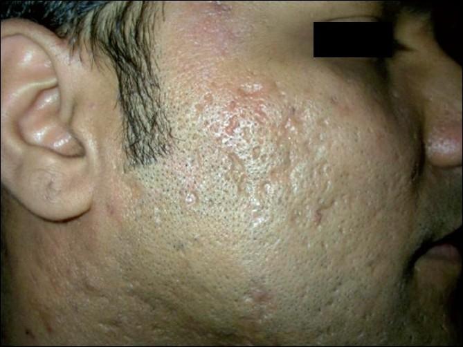 Atrophic acne scarring