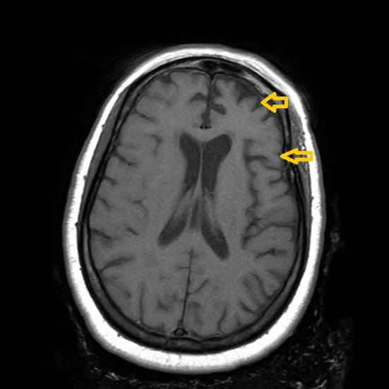 Atrophy of frontal and temporal lobes MRI
