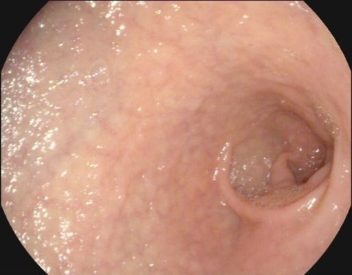 Atrophy with visible vessel pattern Celiac disease