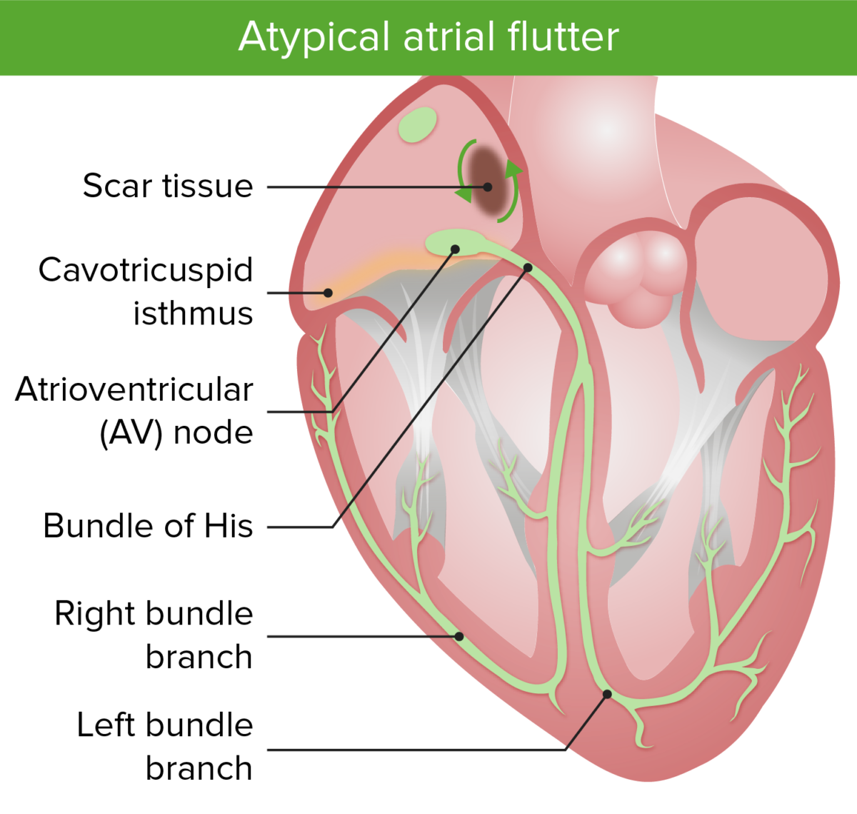 Atypical atrial flutter