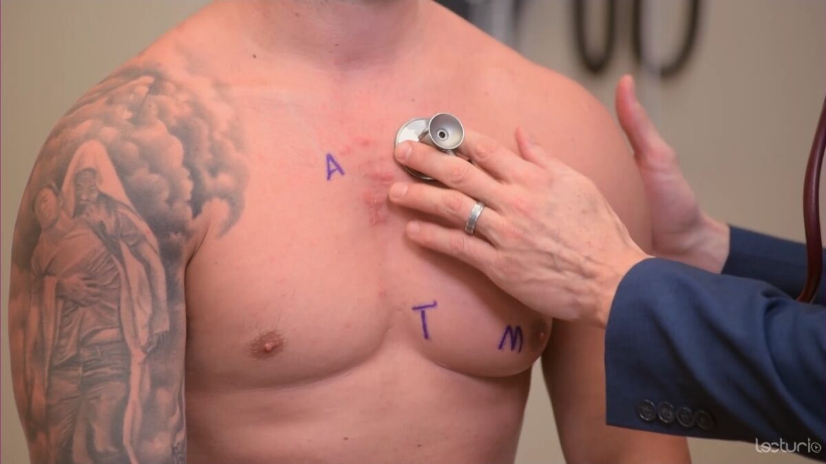 Auscultation using the diaphragm over the pulmonic area