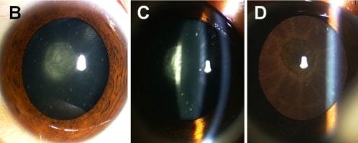 Autosomal dominant congenital cataract