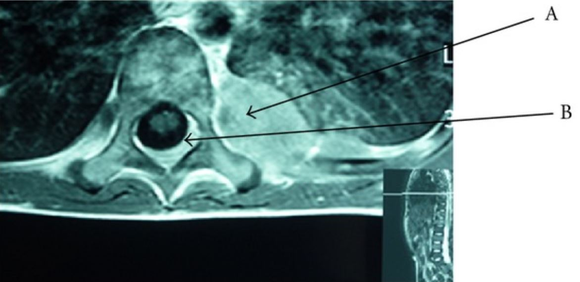 Axial MRI view of the spine