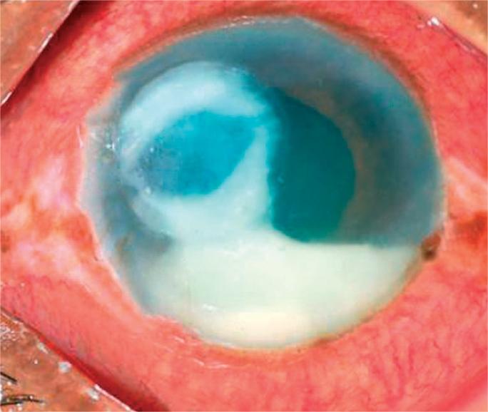 Bacterial corneal ulcer