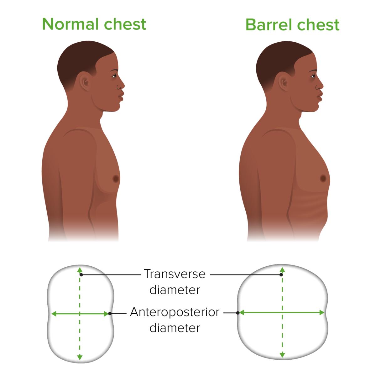 Barrel chest Emphysema