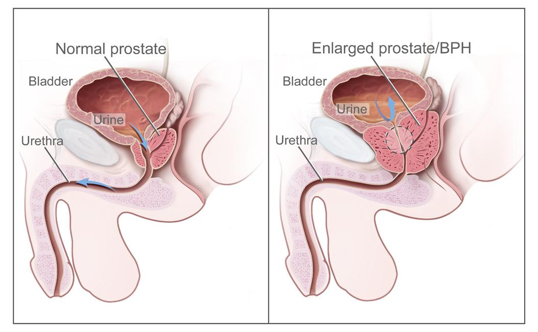 bph vs prostate cancer usmle