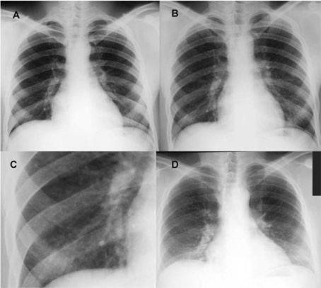 Berylliosis radiograph
