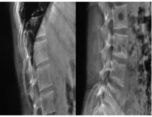 Biconcavity deformities due to osteogenesis imperfecta