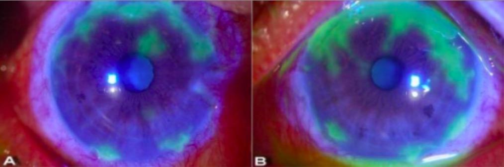Bilateral herpetic keratitis