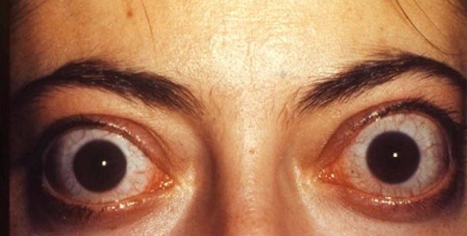 Bilateral infiltrative thyroid-associated ophthalmopathy