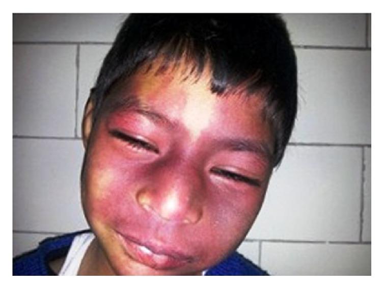 Bilateral nevus flammeus over the face