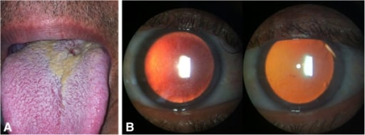 Bilateral nongranulomatous anterior uveitis