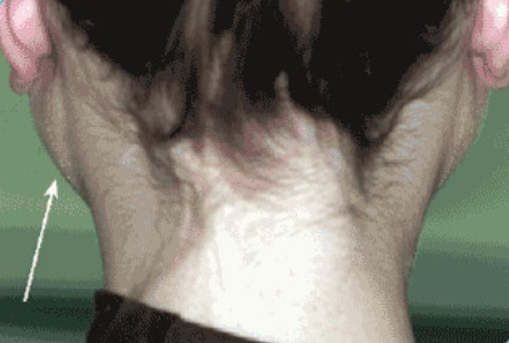 Bilateral parotid gland swelling due to sialadenosis