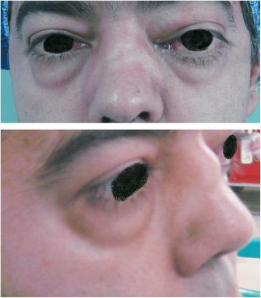 Bilateral proptosis - Granulomatosis