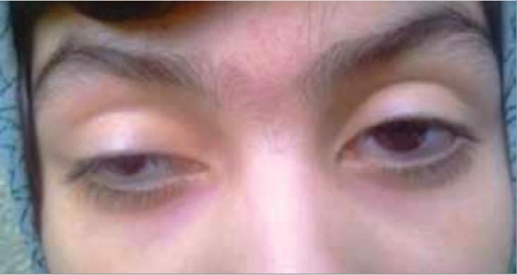 Bilateral ptosis