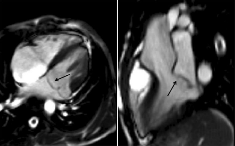 Bileaflet prolapse of the mitral valve at end systole