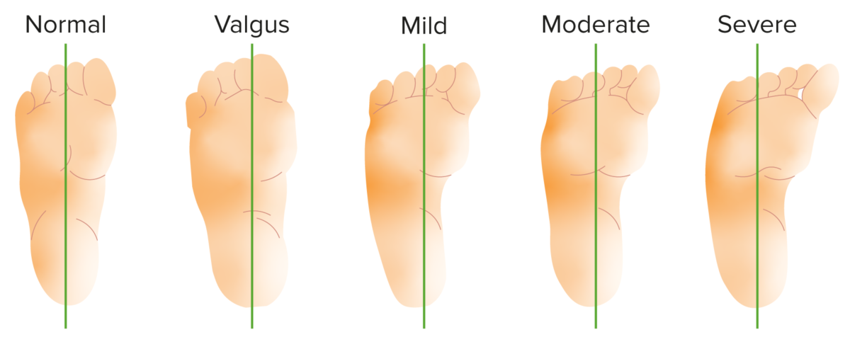 Bleck classification of metatarsus adductus