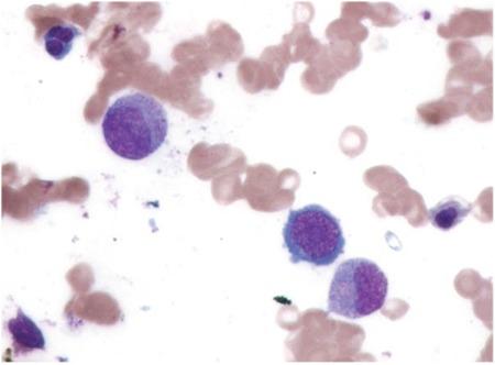 Blood smear of megaloblastic anemia Orotic aciduria