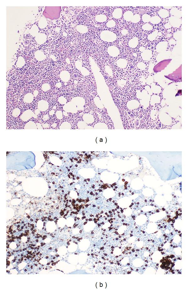 Bone marrow biopsy hairy cell leukemia
