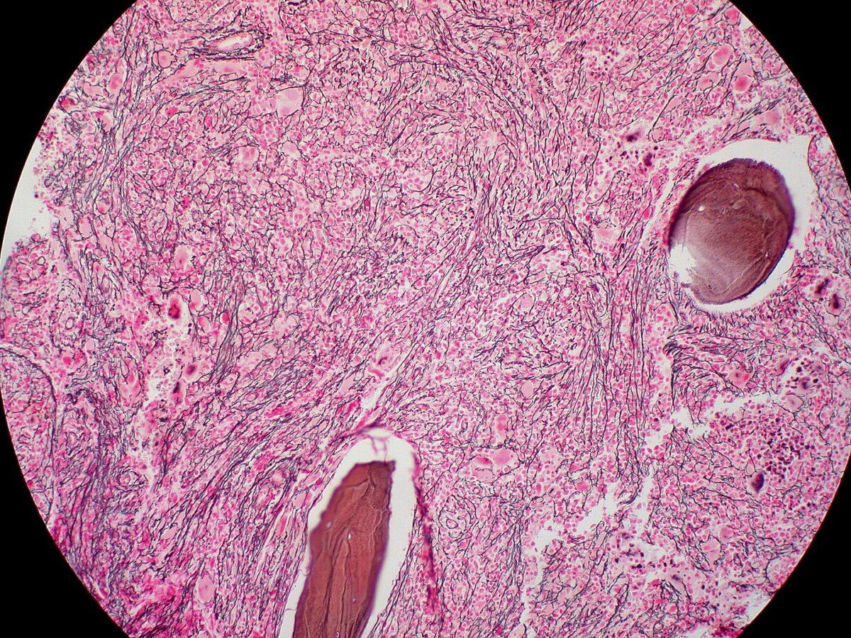 Bone marrow biopsy of myelofibrosis