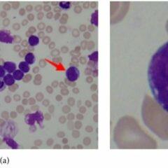 Bone marrow smear from a patient with acute lymphoblastic leukemia