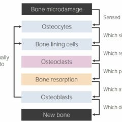 Bone-remodeling diagram
