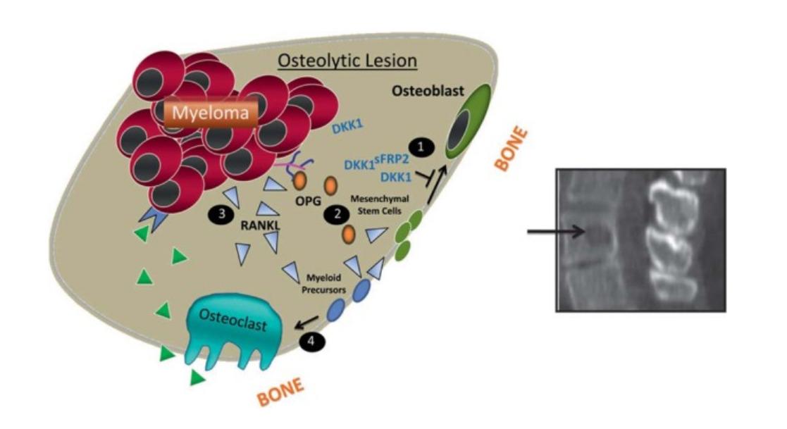 Bone resorption in MM
