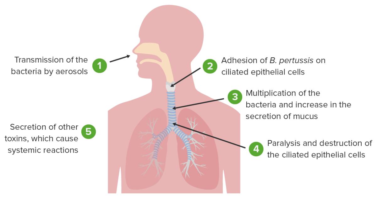 Bordetella pertussis causing whooping cough