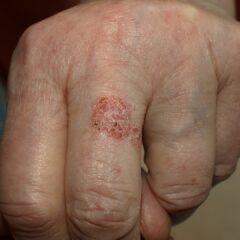 Bowen's disease in an 81-year-old-woman