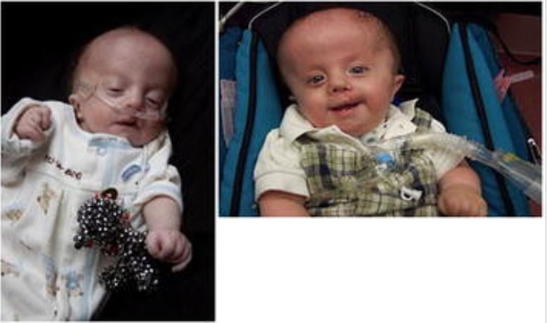 Boy with full trisomy 18 in early infancy and at one year