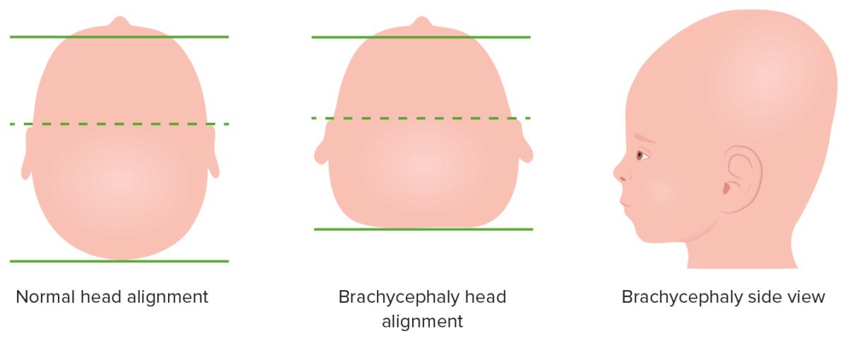 Brachycephaly diagram