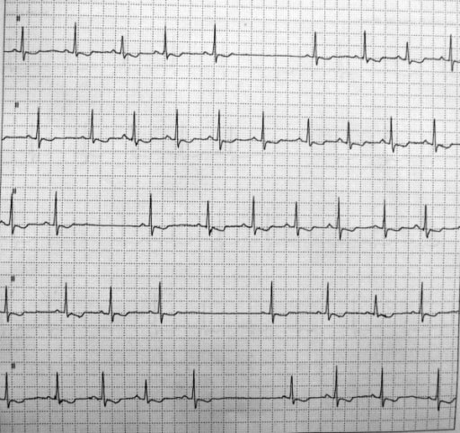Bradycardia-tachycardia syndrome with sinus pauses