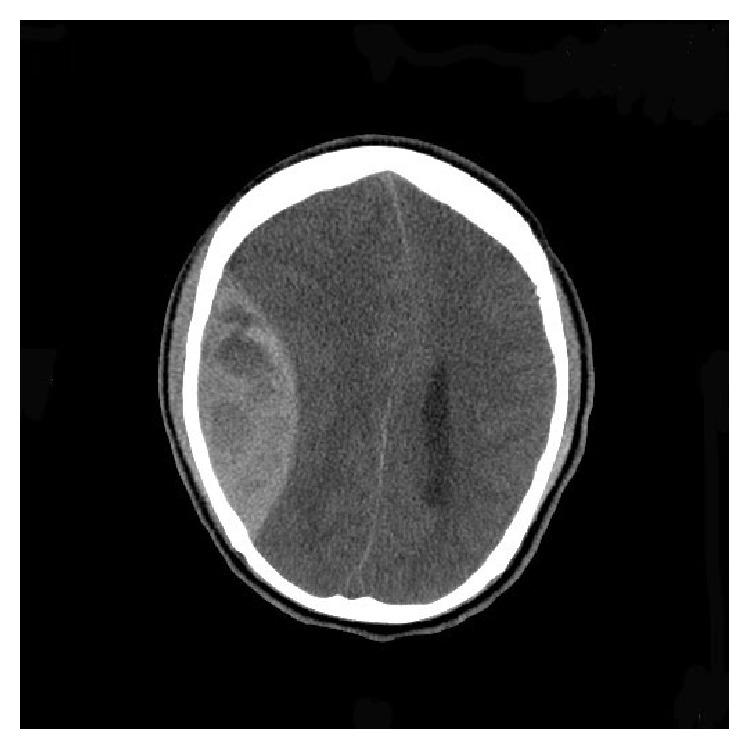 Brain CT showing right large epidural hematoma