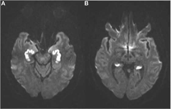 Brain MRI irreversible cytotoxic edema from infarction
