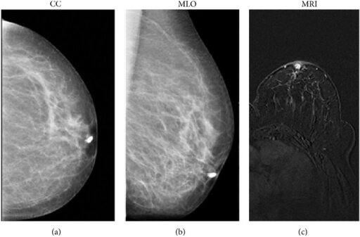 Breast MRI with discharge