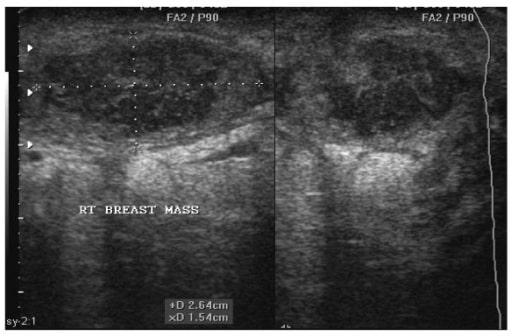 Breast abscess