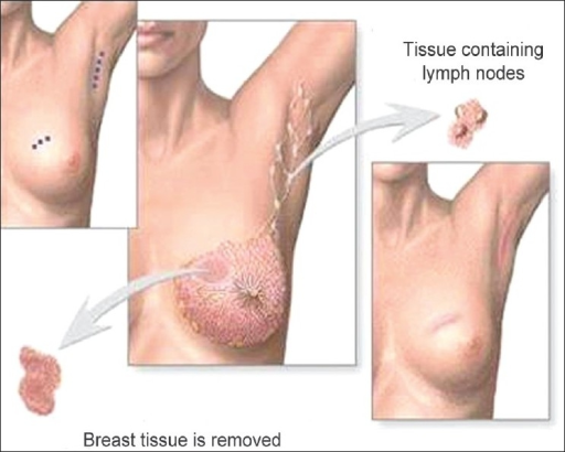 Breast-conserving surgery (lumpectomy)