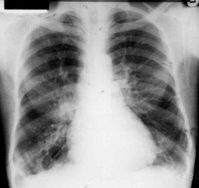 Bronchiectasis imaging