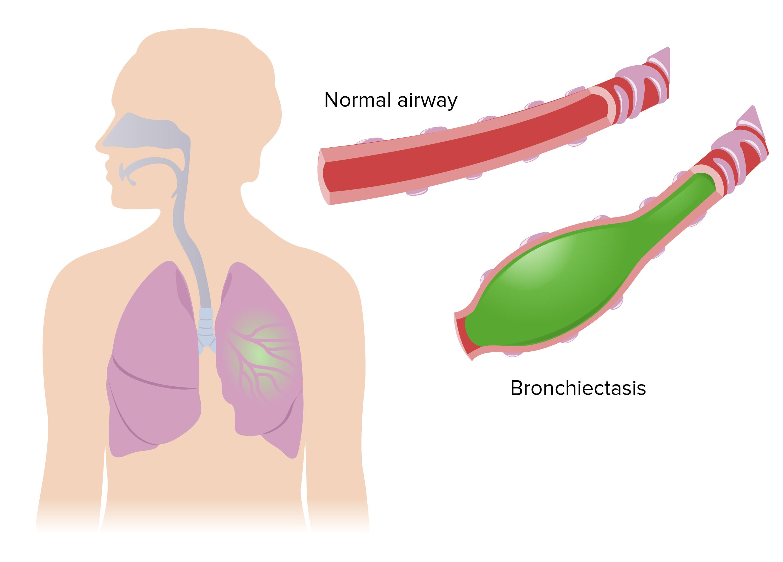 Bronchiectasis pathophysiology
