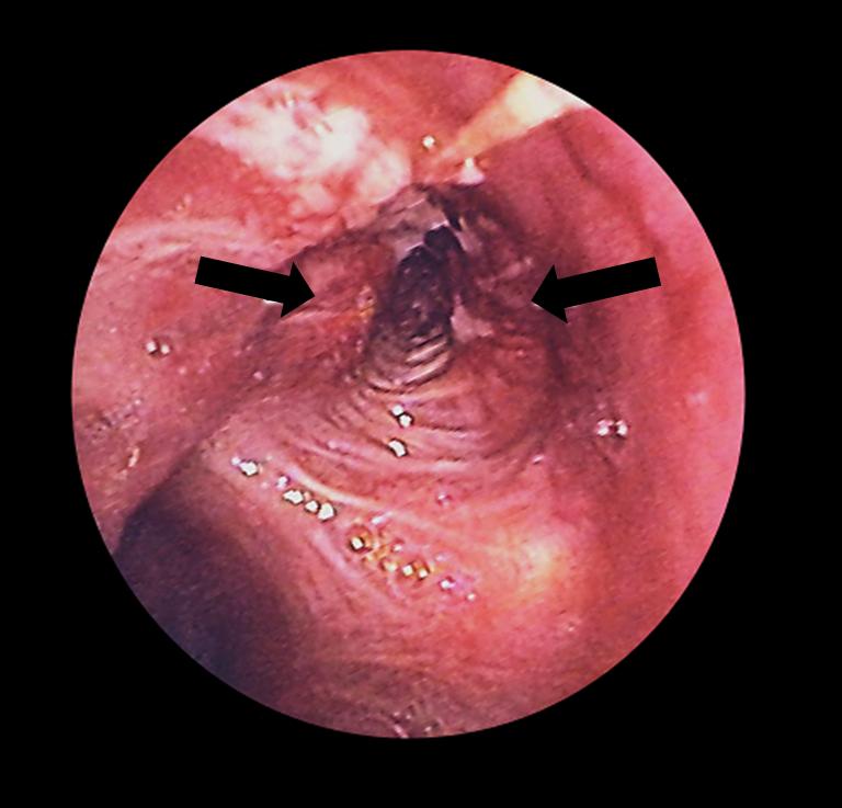 Bronchoscopy lung cancer