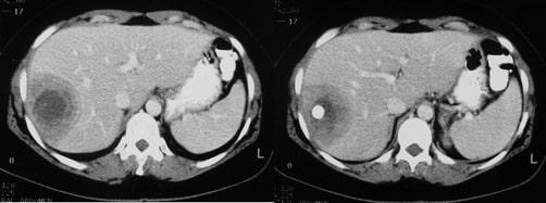 Brucella liver abscess