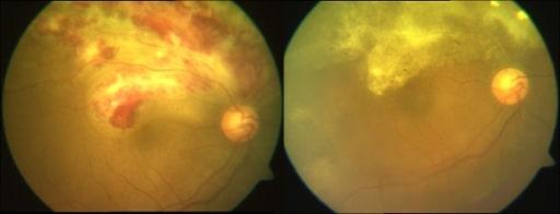 CMV retinitis