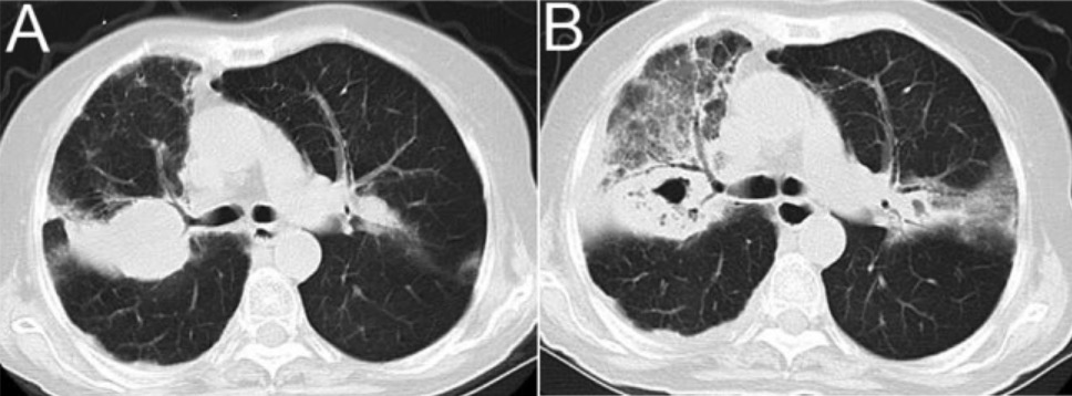 COPD and Nocardia spp