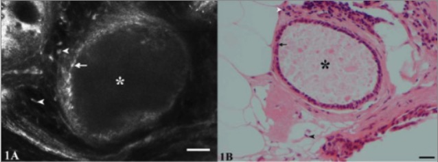 CSLM (A) and H&E (B) images of Fibrocystic changes
