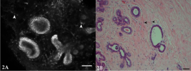CSLM and H&E images of fibrocystic change