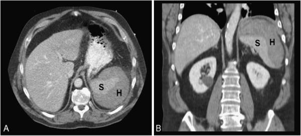 CT of abdomen Rupture of Spleen