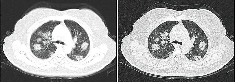 CT imaging rapid progression