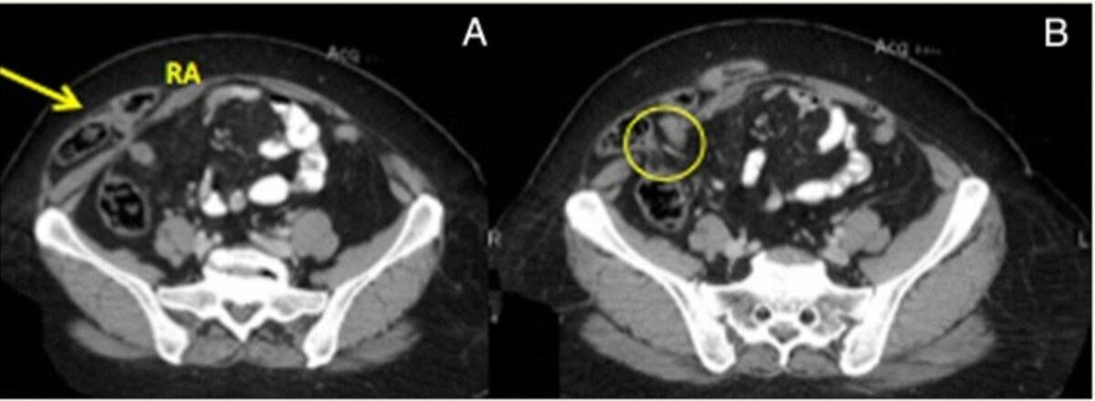 CT of right Spigelian hernia