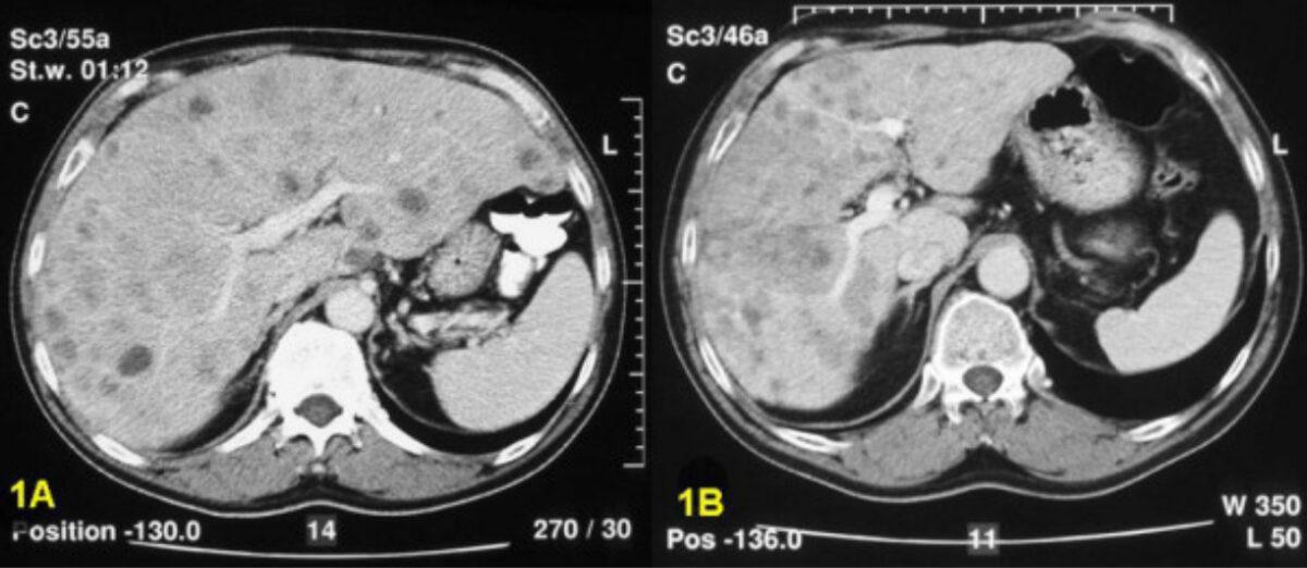 CT scan multiple metastatic carcinoid lesions
