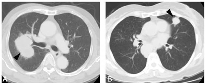 CT scan showing SCLC